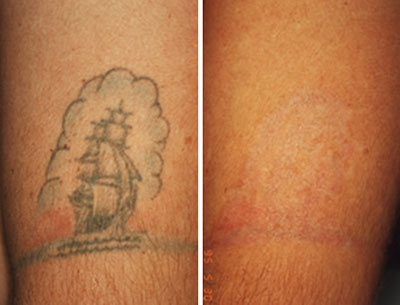 Expectations for laser tattoo removal results for Tattoo laser removal on black skin