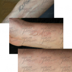houston tattoo removal pics