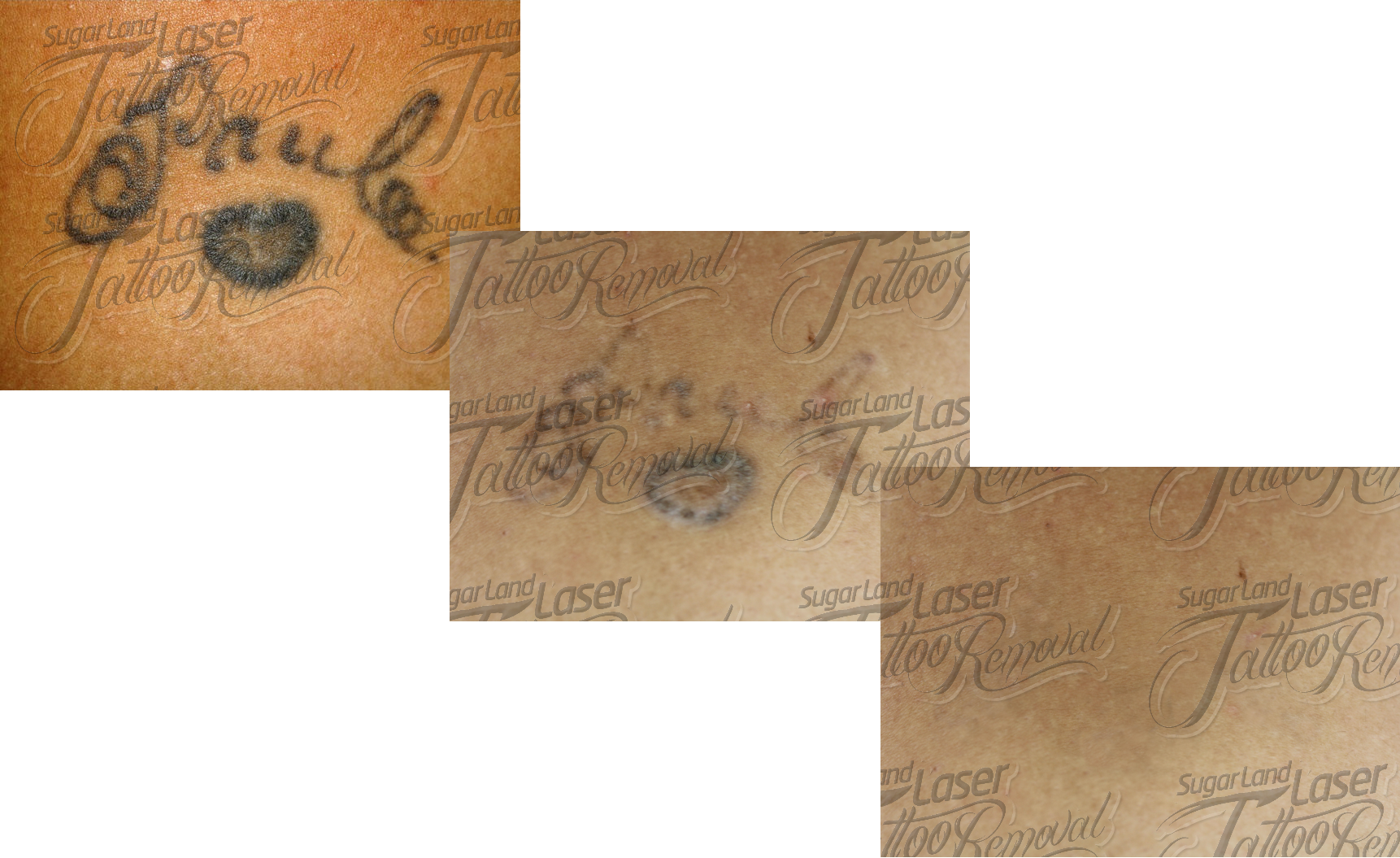 ... tattoo removal 1st session tattoo removal 3rd session tattoo removal