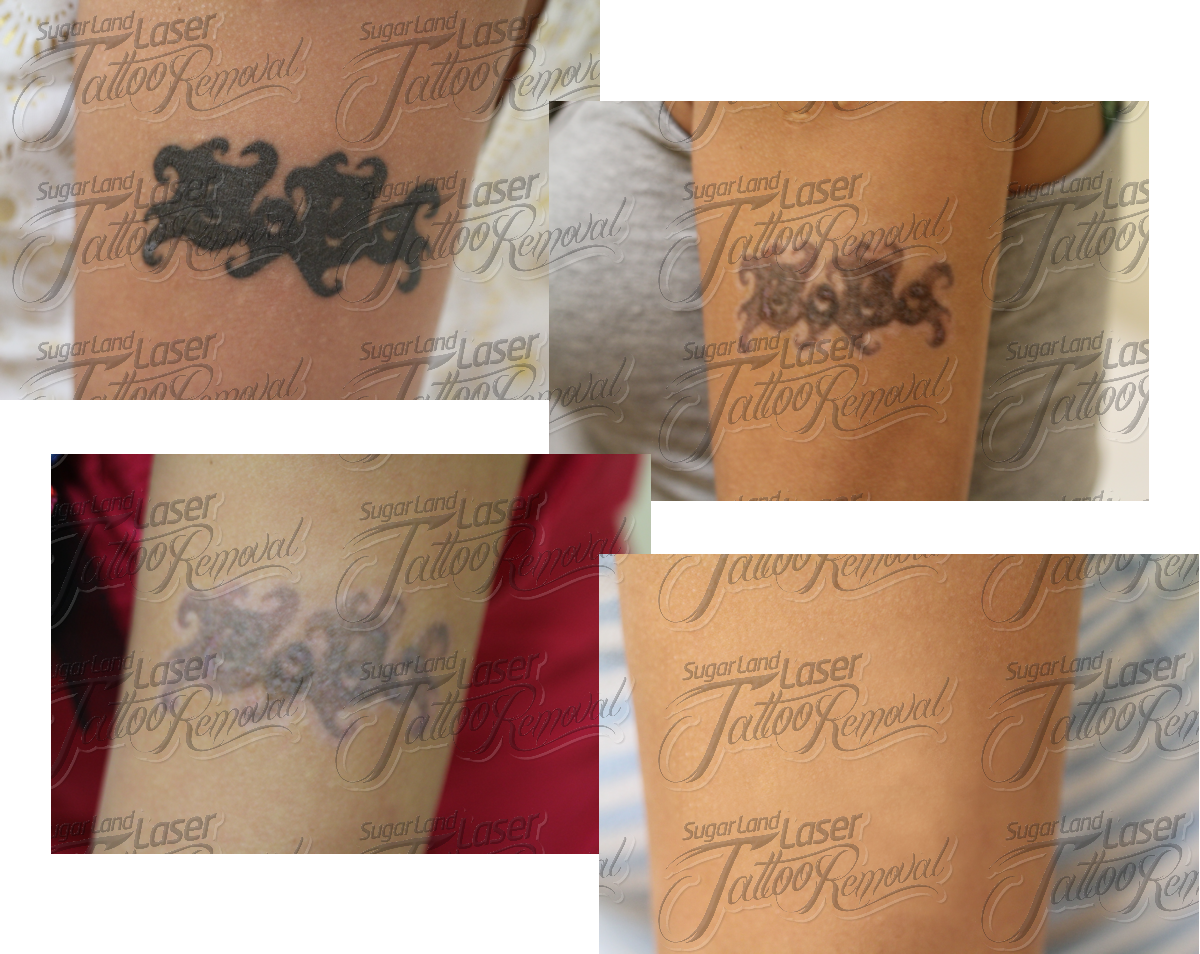 Permalink to Tca Tatto Removal