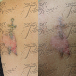 Laser Tattoo Removal Before and After Pictures 0004