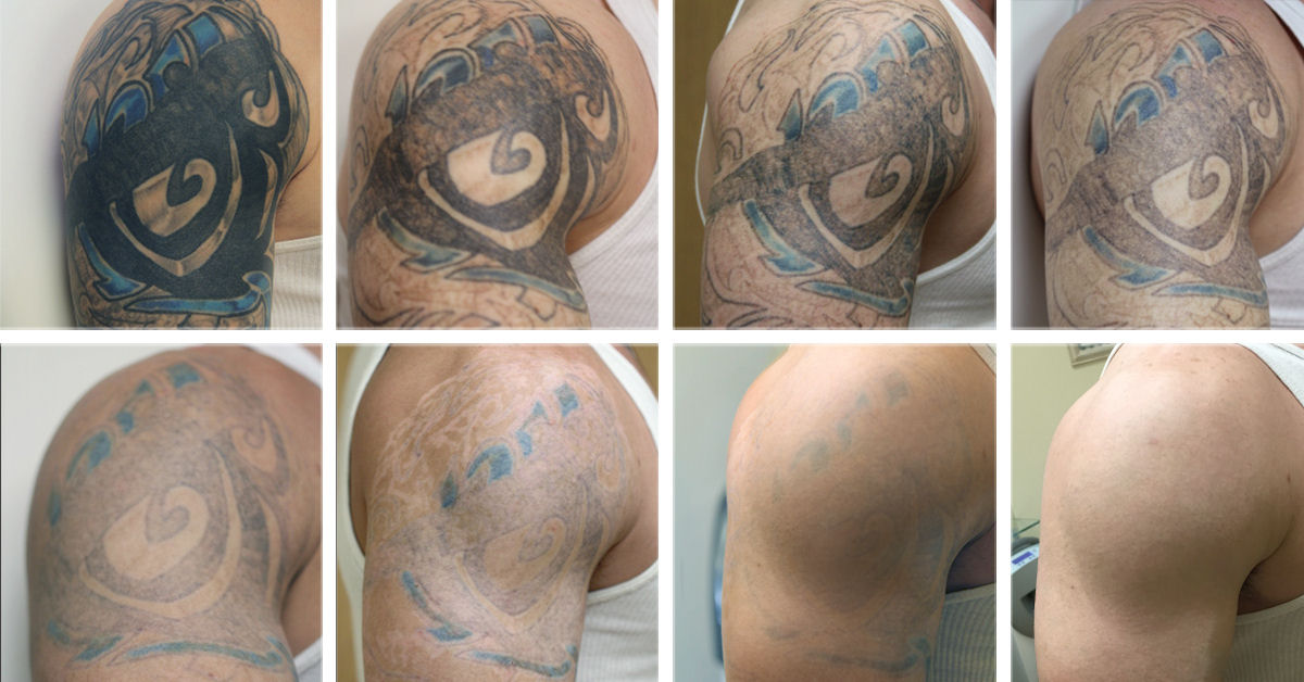Sugar Land Laser Tattoo Removal Prices In Houston, TX