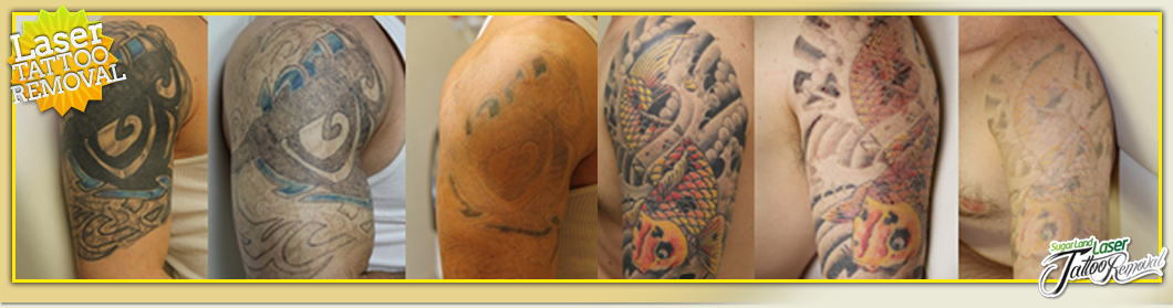 Laser Color Tattoo Removal Before And After laser tattoo removal ...
